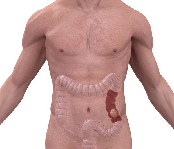 Sintomas del cancer de colon en hombres - primariacetateni.ro - Cancer de colon hombres sintomas